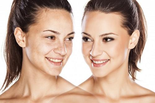 Efekty-peeling-chemiczny-gabinet-kosmetologiczny-trójmiasto