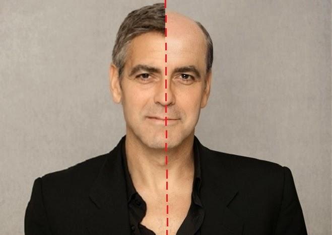 mezoterapia skóry głowy gdańsk